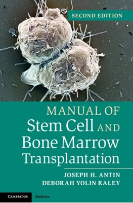 Manual of Stem Cell and Bone Marrow Transplantation Deborah Yolin Raley, Joseph H. Antin 9781107661547