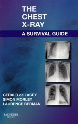The Chest X-Ray: A Survival Guide Laurence Berman, Simon Morley, Gerald De Lacey, Simon (Consultant Radiologist Morley, Laurence (Lecturer and Honorary Consultant Radiologist Berman 9780702030468
