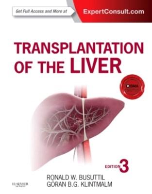 Transplantation of the Liver Ronald W. Busuttil, Goran B. Klintmalm 9781455702688