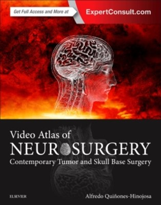 Video Atlas of Neurosurgery Alfredo Quinones-Hinojosa 9780323261494