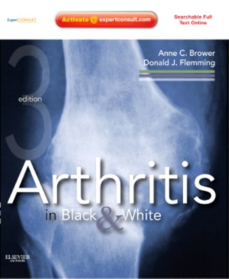 Arthritis in Black and White Donald J. Flemming, Anne C. Brower, Anne C. (Professor and Chair of Radiology Brower, Donald J. (Vice Chair for Education and Residency Director Flemming 9781416055952