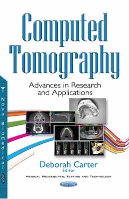 Computed Tomography Ukendt forfatter 9781536107661