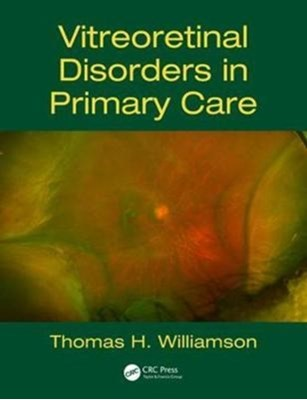 Vitreoretinal Disorders in Primary Care Thomas H. (St Thomas Hospital Williamson 9781138628113