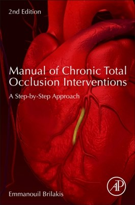 Manual of Chronic Total Occlusion Interventions Emmanouil (Director Brilakis 9780128099292