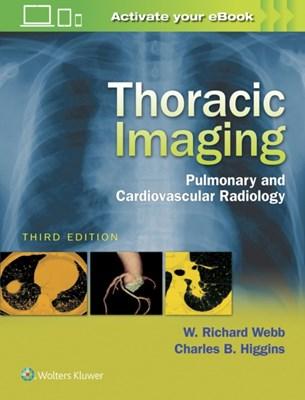 Thoracic Imaging Charles B. Higgins, W.Richard Webb 9781496321046