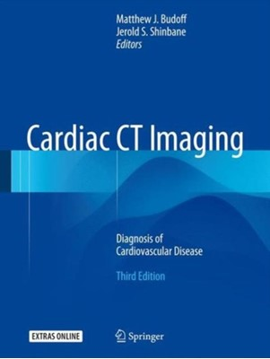 Cardiac CT Imaging  9783319282176