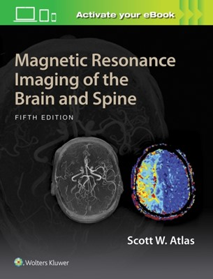 Magnetic Resonance Imaging of the Brain and Spine Scott W. Atlas 9781469873206