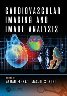 Cardiovascular Imaging and Image Analysis  9781498797580