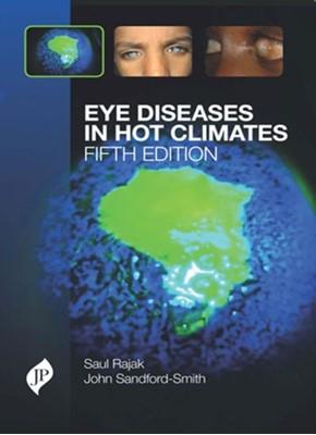 Eye Diseases in Hot Climates John Sandford-Smith, Saul N. Rajak 9781909836228