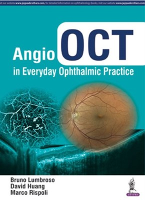 Angio OCT in Everyday Ophthalmic Practice David Huang, Marco Rispoli, Bruno Lumbroso 9789352700844