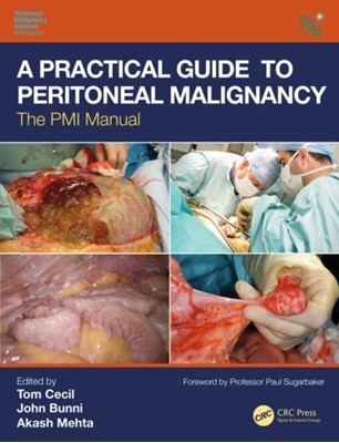 A Practical Guide to Peritoneal Malignancy  9781138495111