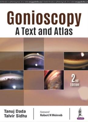Gonioscopy: A Text and Atlas Talvir Sidhu, Tanuj Dada 9789352701520
