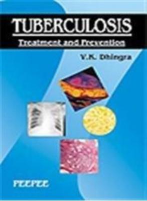 Tuberculosis V.K. Dhingra 9788184450378